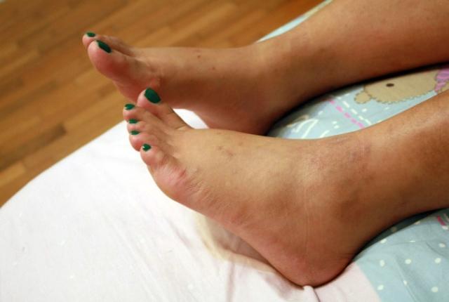 Swelling In Feet