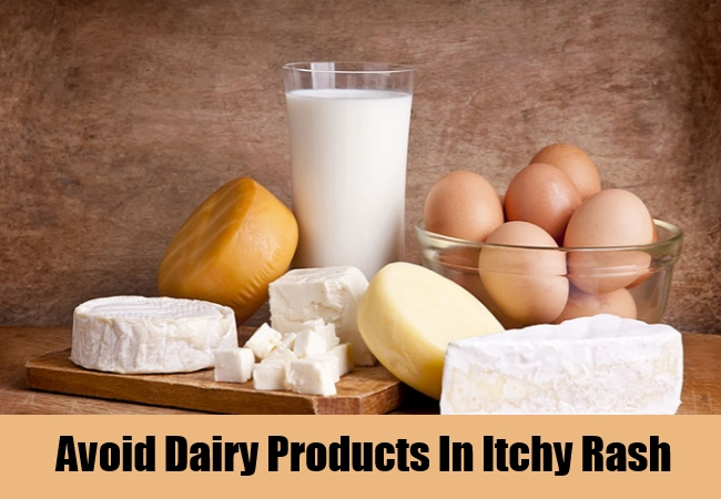 Avoid Dairy Products In Itchy Rash