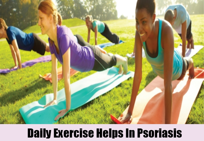 Daily Exercise Helps In Psoriasis