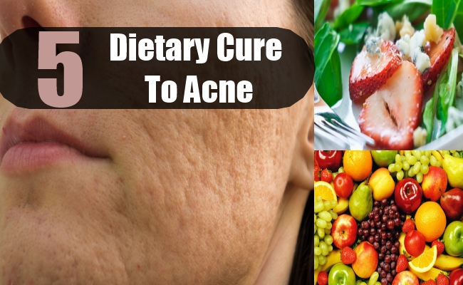 Dietary Cure For Acne