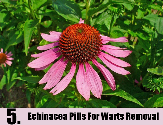 Echinacea Pills For Warts Removal
