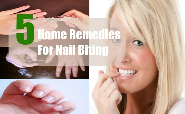 Home Remedies For Nail Biting