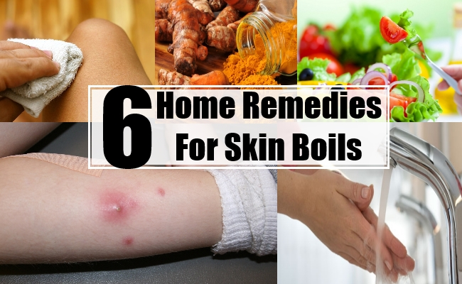 Remedies For Skin Boils