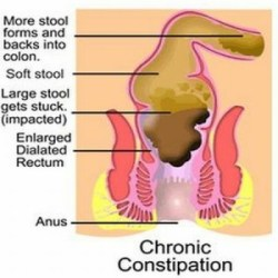Drugs & Medications To Treat Constipation
