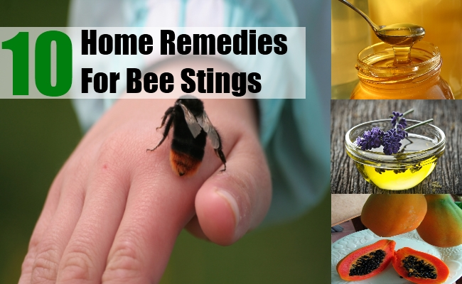 Home Remedies For Bee Stings