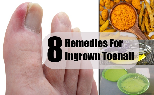 8 home remedies ingrown toenail
