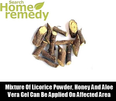 Licorice Cure
