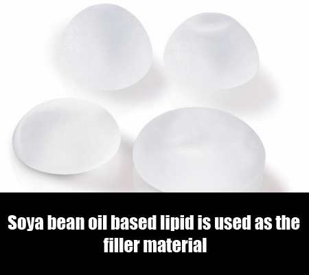 Soya Bean Oil Filled Breast Implant