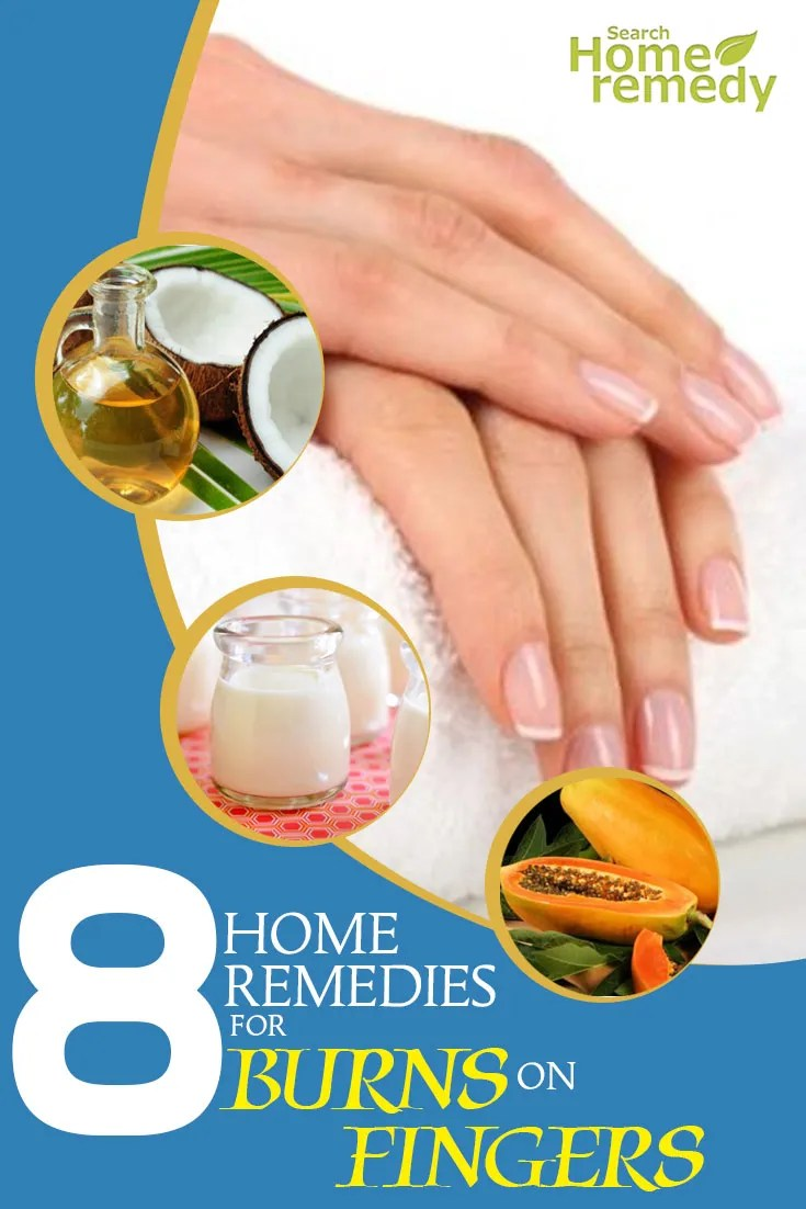 Excellent Home Remedies For Burns On Fingers