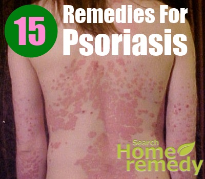 15 Effective Home Remedies For Psoriasis