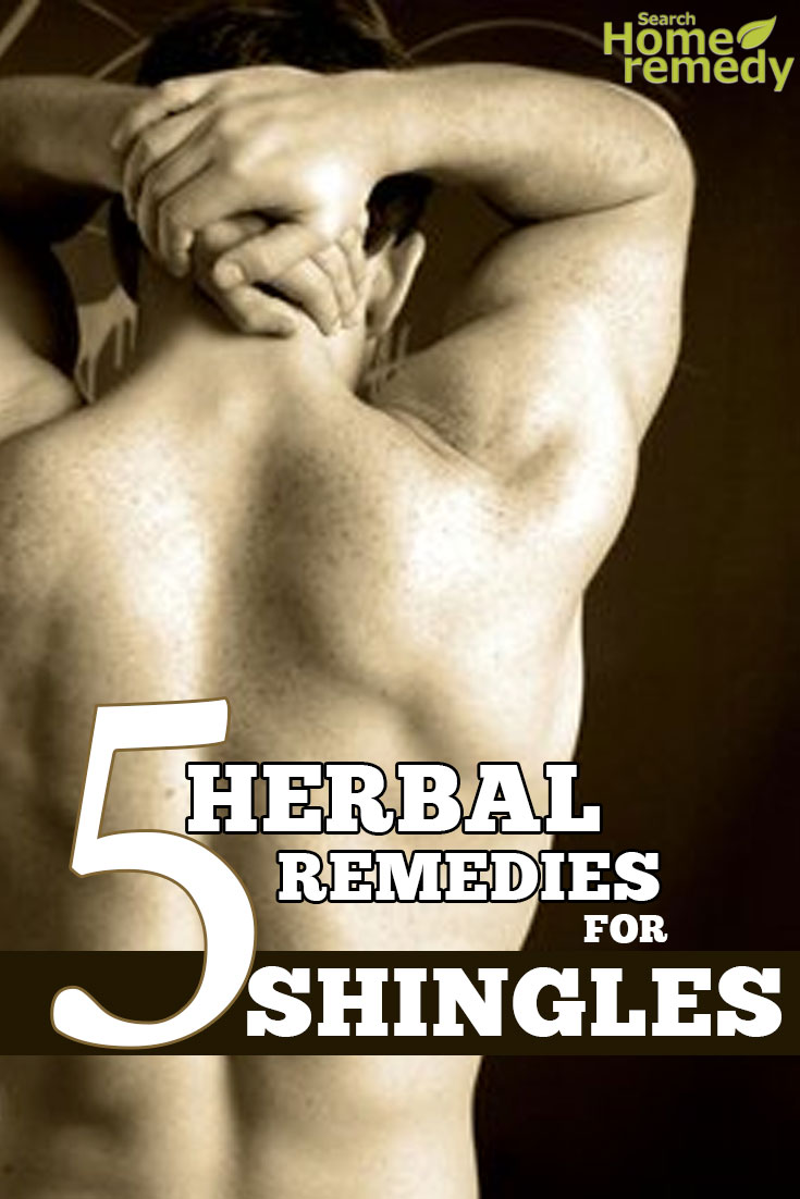Herbal Remedies for Shingles