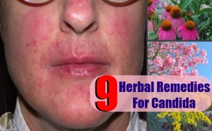 9 Effective Herbal Remedies For Candida