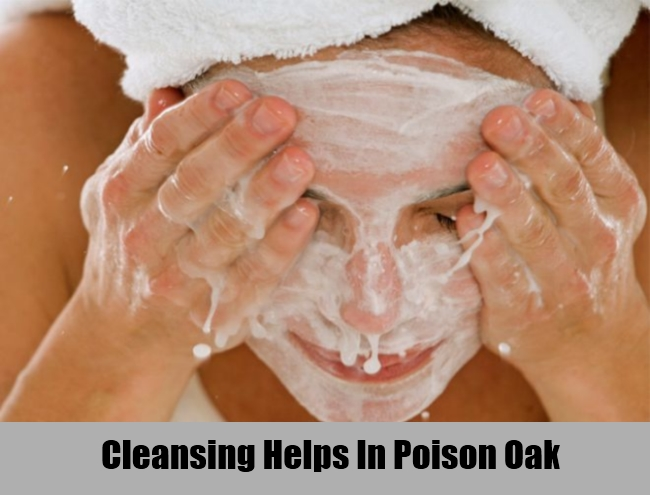 Cleansing Helps In Poison Oak