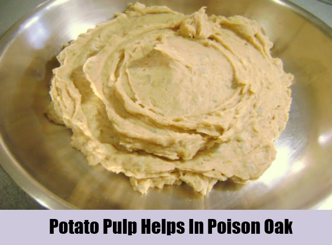 Potato Pulp Helps In Poison Oak