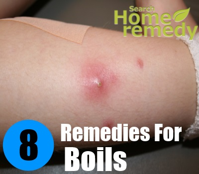 8 Excellent Home Remedies For Boils