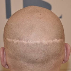 scars after hair transplant