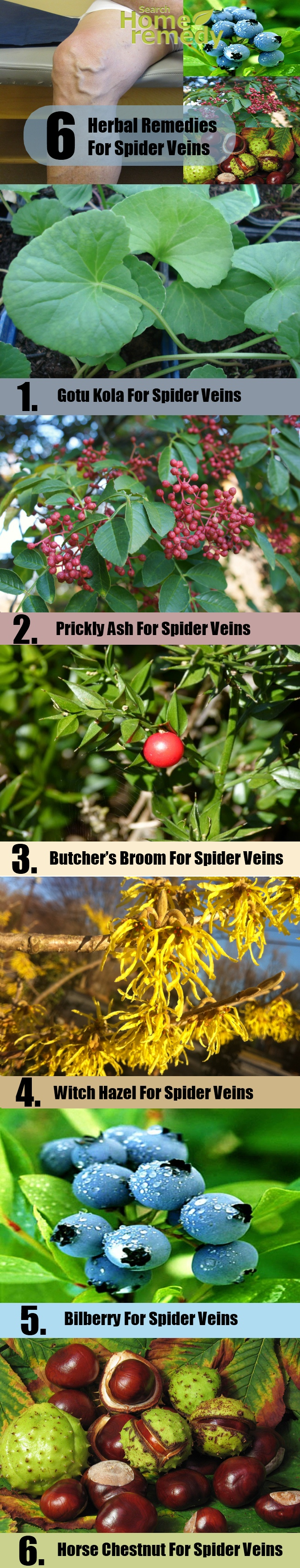 Remedies For Spider Veins
