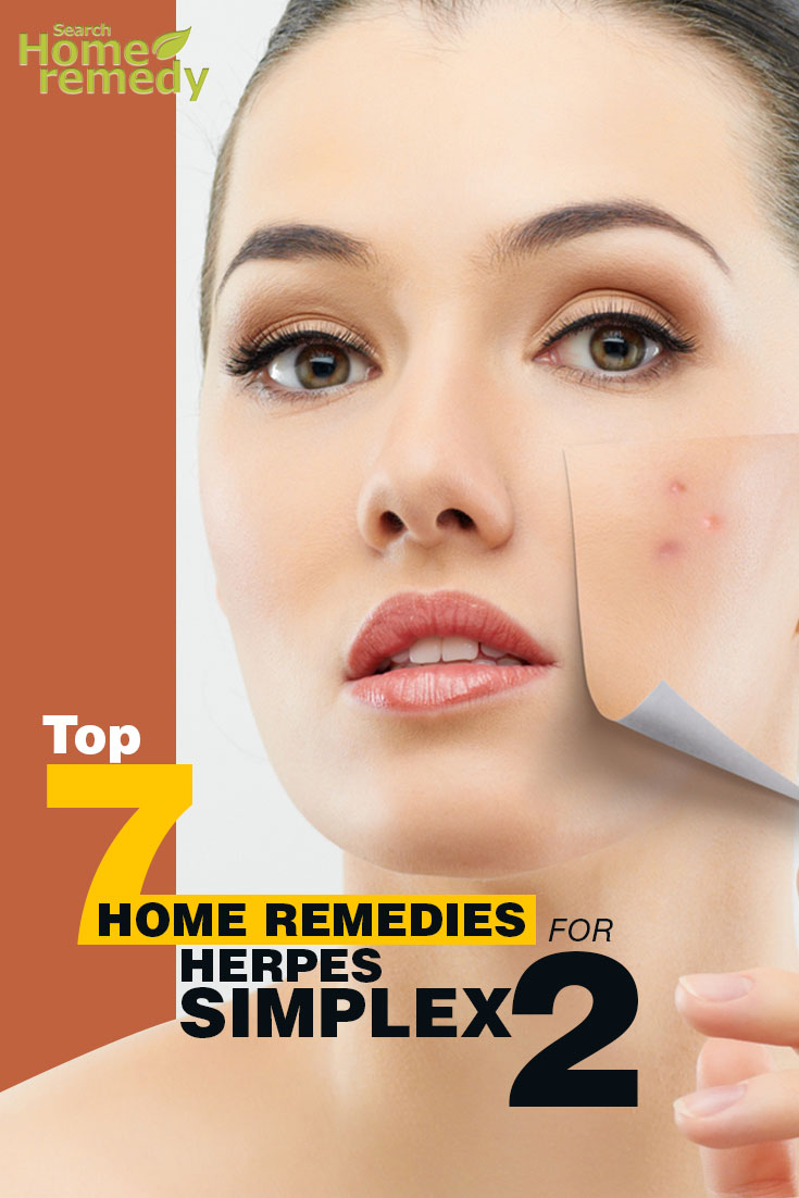 Natural remedy for facial herpes
