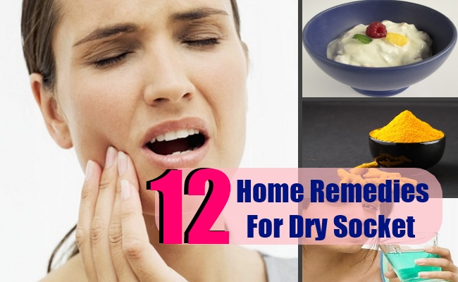12 Effective Home Remedies For Dry Socket