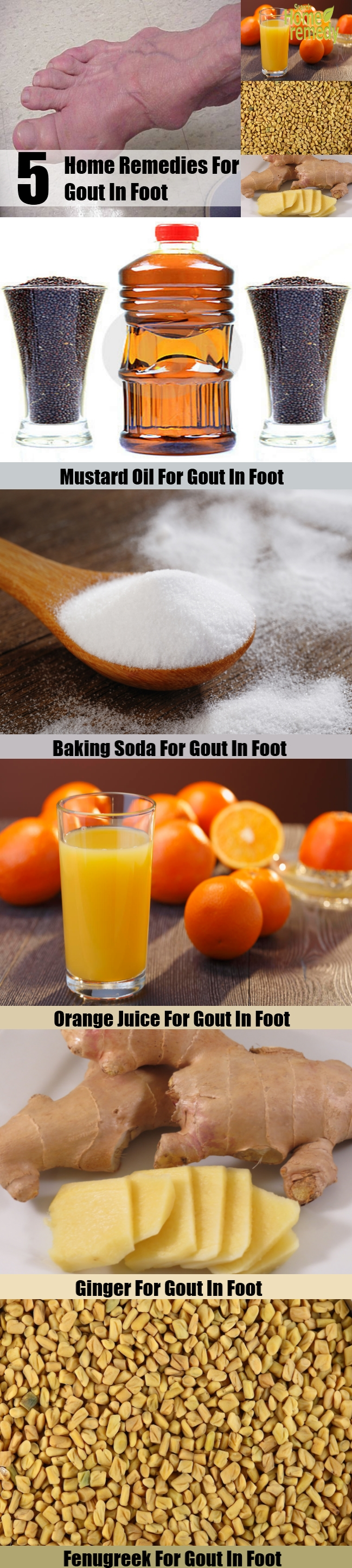 5 Home Remedies For Gout In Foot