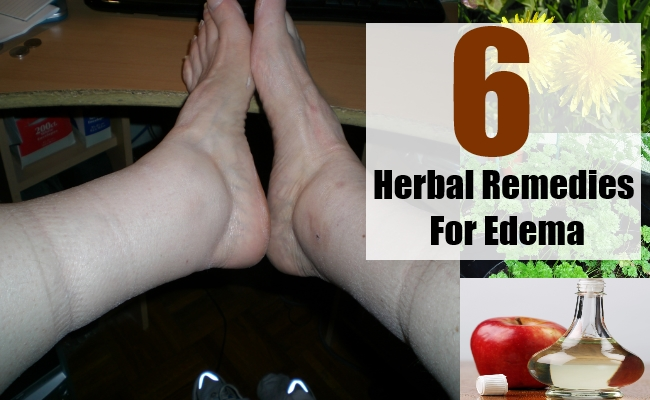 Herbal Remedies For Edema