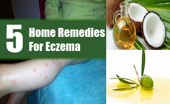 Home Remedies For Eczema