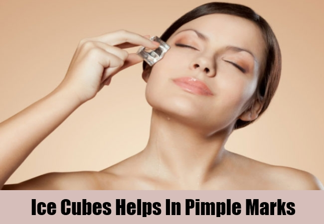 Ice Cubes Helps In Pimple Marks