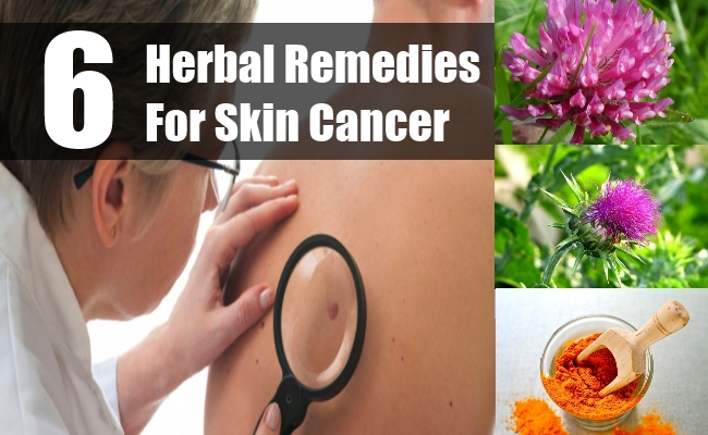 Herbal Remedies For Skin Cancer