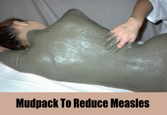 Mudpack To Reduce Measles