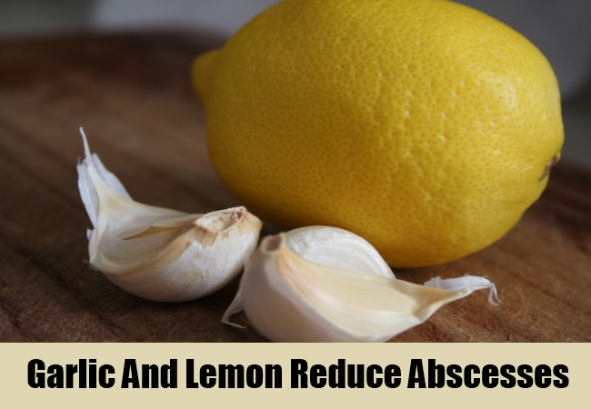 Garlic And Lemon Reduce Abscesses