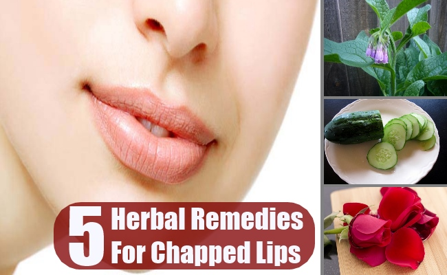 Top 5 Herbal Remedies For Chapped Lips