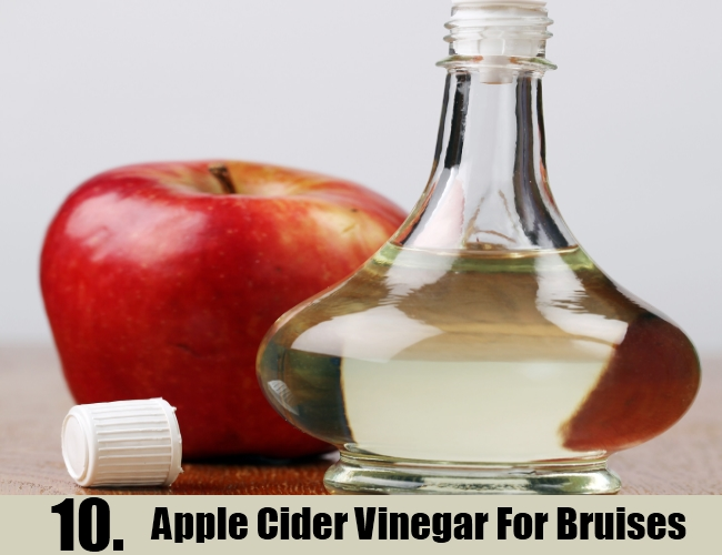 Apple Cider Vinegar For Bruises