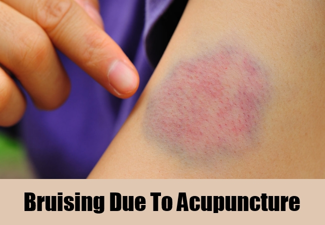 Bruising Due To Acupuncture