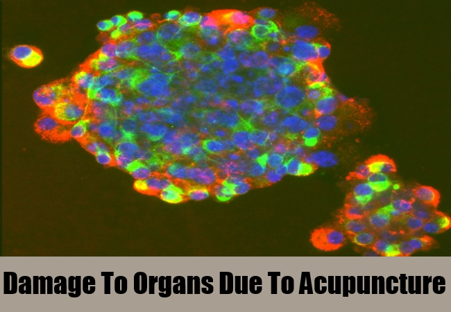 Damage To Organs Due To Acupuncture
