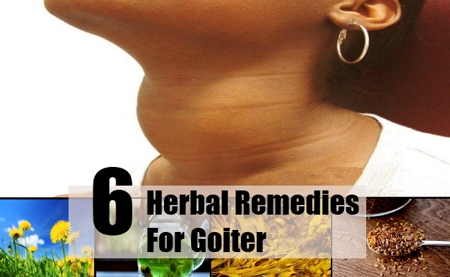 Herbal Remedies For Goiter
