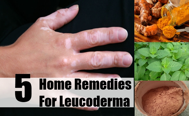 Leucoderma Home Remedies, Natural Treatments And Cure