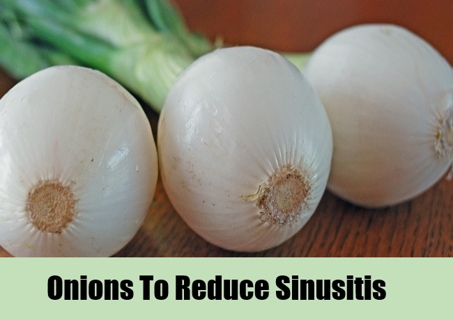 Onions To Reduce Sinusitis