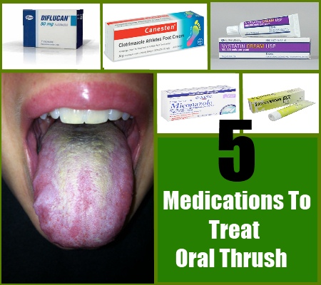 Top 5 Drugs And Medications To Treat Oral Thrush