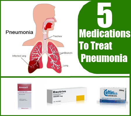 How To Treat Pneumonia With Drugs And Medications   Search ...