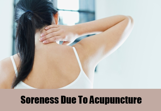 Soreness Due To Acupuncture