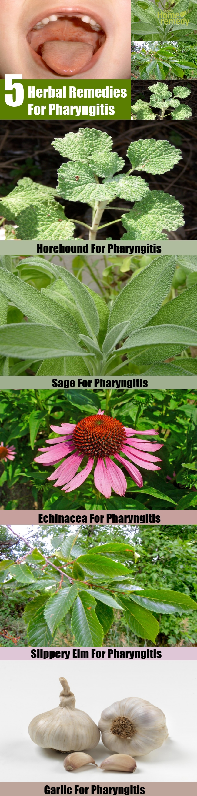 5 Excellent Herbal Remedies For Pharyngitis