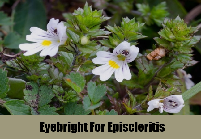 Eyebright For Episcleritis