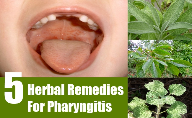 Herbal Remedies For Pharyngitis