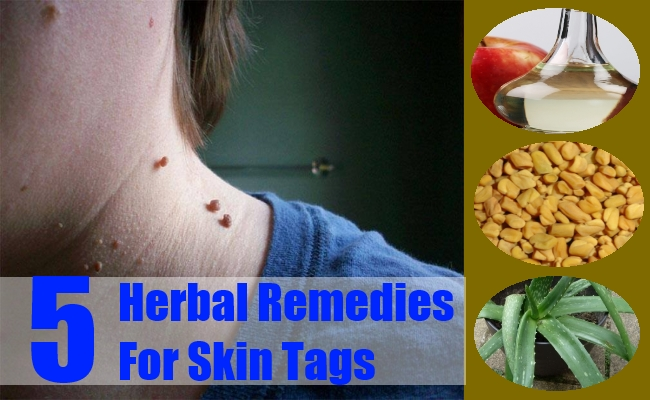 Herbal Remedies For Skin Tags