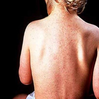 Top 5 Home Remedies For Roseola - Get Relieved From ...