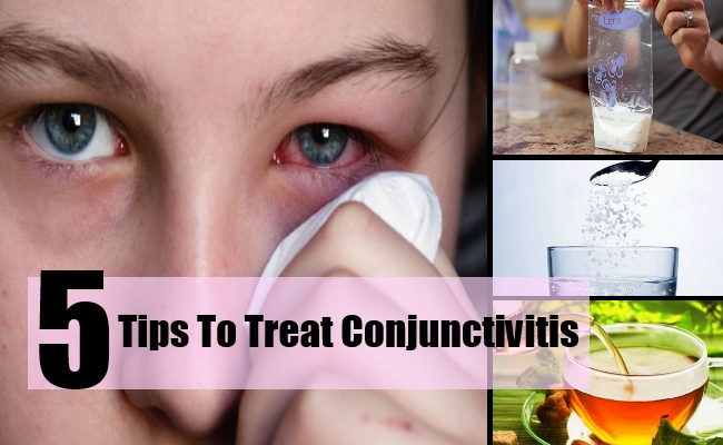 5 Tips To Treat Conjunctivitis