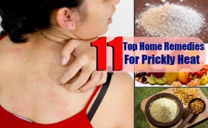 11 Top Home Remedies For Prickly Heat