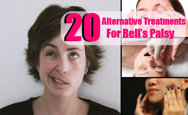 20 Alternative Treatments For Bell's Palsy