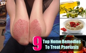 9 Top Home Remedies To Treat Psoriasis