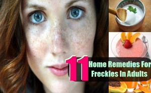 11 Top Home Remedies For Freckles In Adults
